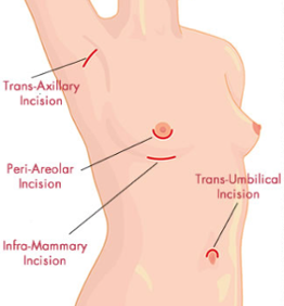breast-augmentation-access-incision-choices