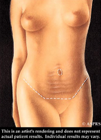 abdominal-contouring-options