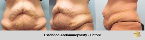 abdominal-contouring-options
