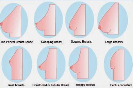 tubular-breast