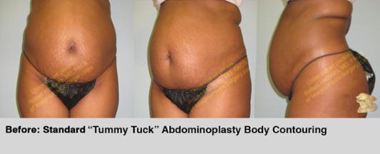 abdominoplasty-tummy-tuck-body-contouring