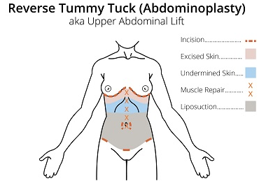 Reverse Tummy Tuck.png